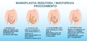 seios firmes, dr Marco Longo, seios bonitos, Cirurgiao Plastico, Curitiba, São Paulo, Cirurgia Plastica, mamoplastia, protese de mama, silicone, mastopexia, mamoplastia redutora