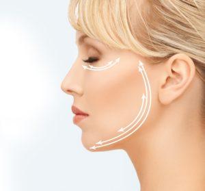 FaceLift, Dr Marco Longo, Cirurgião Plástico, Ritidoplastia, Cirurgia de Rugas, Rugas, Rejuvelhecimento, Botox