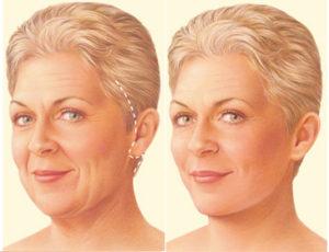 Antes e depois, FaceLift, Dr Marco Longo, Cirurgião Plástico, Ritidoplastia, Cirurgia de Rugas, Rugas, Rejuvelhecimento, Botox