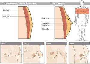 Cirurgia plastica em homem, dr Marco Longo