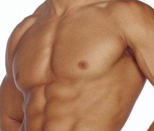 ginecomastia, dr marco vinicius losso longo, cirurgia plastica em homem