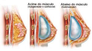 Local de colocação do implante mamário, prótese de mama, Dr Marco Longo
