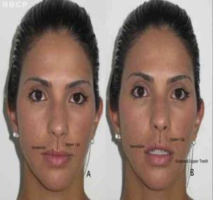 dr Marco Longo, lip lift, lábio superior, envelhecimento, sorriso, cirurgia plástica