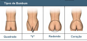 Formas de bumbum, dr Marco Vinicius Losso Longo