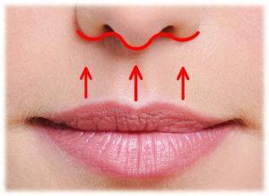Lip Lift Incision, Lip Lift, Lifting de lábios, Dr Marco Longo, Cirurgia Plástica dos lábios, preenchimento