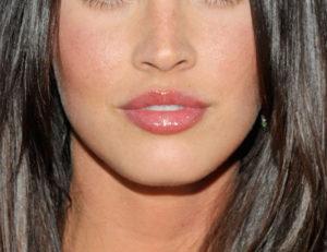 lip lift, lift de lábios, Dr Marco Longo,
