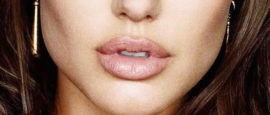 lip lift, encurtamento de labio, dr Marco Longo, Lifting de lábios