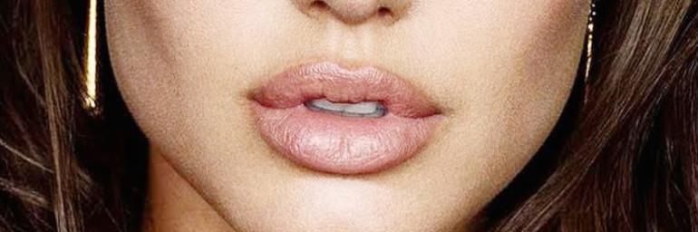 Lifting de lábios – Lip Lift
