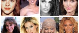 tipos de rosto, rinoplastia, nariz, rosto, famosas, dr Marco Longo, cirurgia plastica,