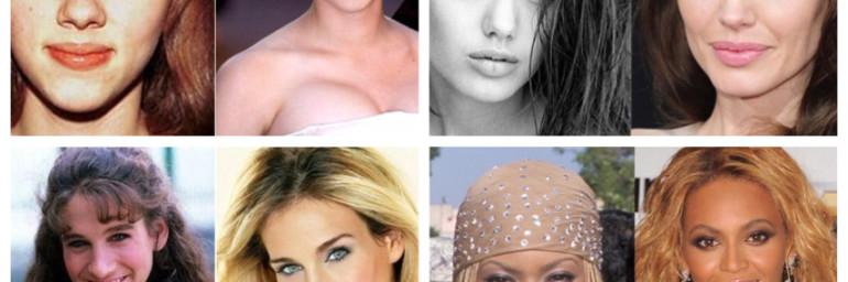 Qual o melhor nariz para cada tipo de rosto?