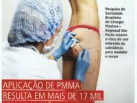 PMMA, Bioplastia, metacril, Cirurgia plastica,