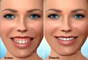 Sorriso gengival, sorriso gengival antes e depois, dr Marco Longo, gummy smiles, cirurgia plastica, Cirurgiao plastico, rinoplastia,