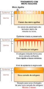microagulhamento cirúrgico, IPCA, indução percutânea de colágeno com agulhas, microagulhamento, cirurgia plastica, pele jovem, rejuvenescimento, dr Marco Longo